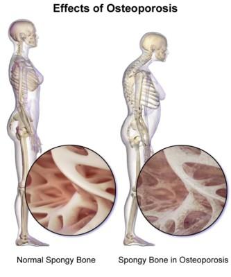 Osteoporosis weakens bones