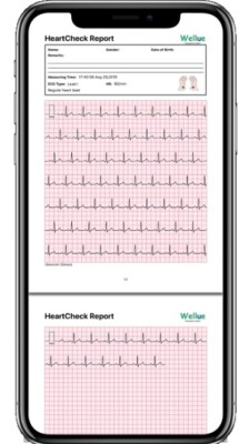 The Pulsebit Heart Check Report