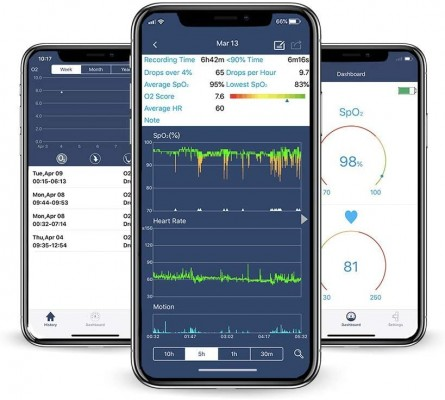 Viatom sleep apnea oxygen monitor app software